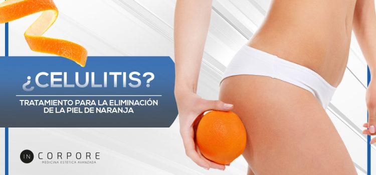 Celulitis: descubre la fórmula para tratarla eficazmente