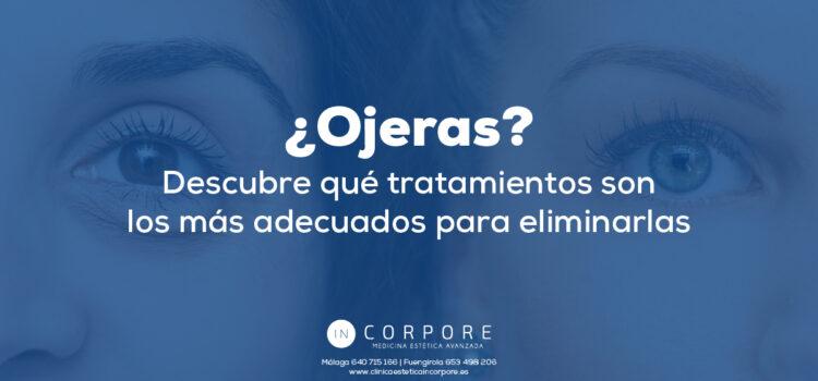 ¿Ojeras? Descubre qué tratamientos son los más adecuados para eliminarlas