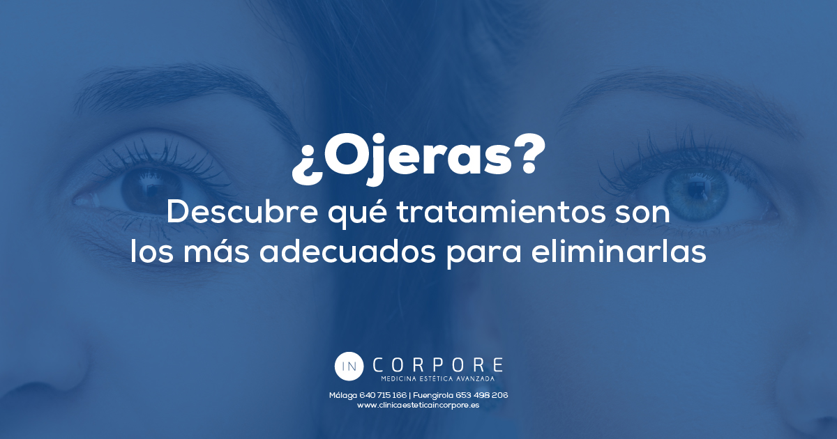 Ojeras y sus tratamientos para eliminarlas