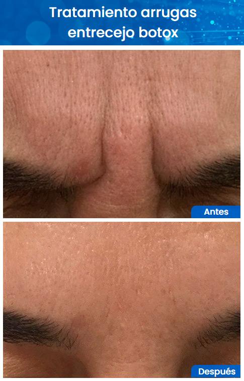 Antes y despues botox entrecejo