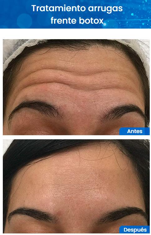 Antes y despues botox líneas de expresion